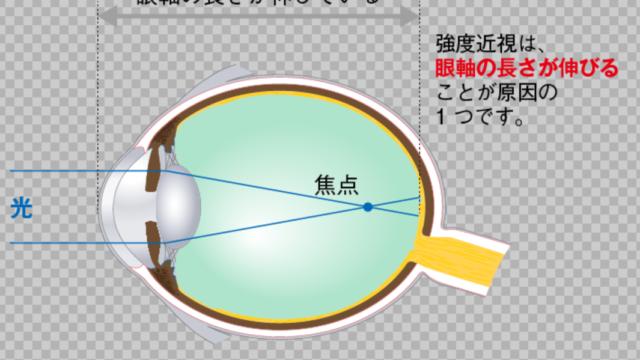 強度近視 緑内障 リスク 簡単 予防法